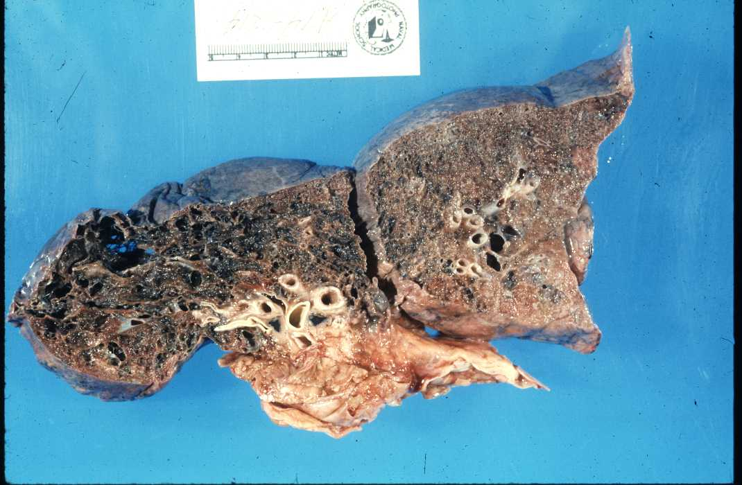 Gevolgen Van Roken Tijdens Zwangerschap de Gevolgen Van Roken